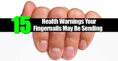 15 Health Warnings Your Fingernails May Be Sending - Ohsimplycom gray color toenails - Gray Things Nail Growth Polish, Fingernail Health, Nail Problems, Fungal Nail Infection, Hand Care, Healthy Nails, Feet Care, Perfect Nails, Toe Nails