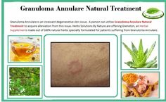 Natural Treatment for Granuloma Annulare Skin condiotin
