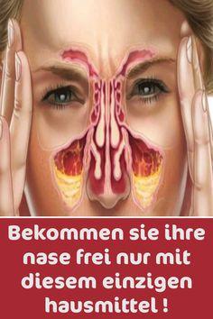 Infection Des Sinus, Les Allergies, Fitness Nutrition, Healthy Life, Halloween Face Makeup, Congestion, Virus, Bizarre, Trends