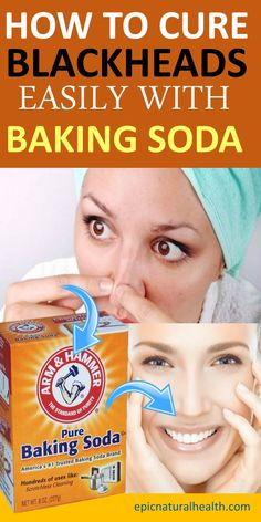 How To Remove BLACKHEADS Instantly With BAKING SODA Blackheads are certainly not a beauty spot anybody would want! alThough blackheads are nothing to worry abou. How To Remove Blackheads At Home Instantly Be Natural, Natural Skin, Natural Beauty, All You Need Is, What Are Blackheads, How To Remove Blackheads, Pimples, Soda Brands, Cleaning Painted Walls