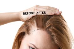Natural Hair Loss Treatment, Natural Hair Growth, Natural Hair Styles, Stop Hair Loss, Prevent Hair Loss, Hair Loss Clinic, Kerastase, Prp Hair, Healthy Hair Growth