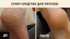 Если вас мучает грубая кожа на пятках, шелушения, трещинки, попробуйте этот рецепт! После такой процедуры пяточки станут мягкими и розовыми как у младенца!