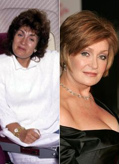 Sharon Osbourne Plastic Surgery Before And After – Worst Plastic Surgery Sharon Osbourne Plastic Surgery Before And After – Worst Plastic Surgery Bad Plastic Surgeries, Plastic Surgery Photos, Celebrity Plastic Surgery, Sharon Osbourne, Ozzy Osbourne, Celebrities Before And After, Celebrities Then And Now, Beautiful Celebrities, Carpe Diem