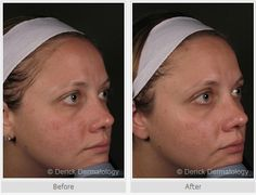 1 Vbeam treatment done on nose and cheeks only Laser Surgery
