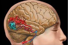 Paraneoplastik Beyin Sapı Ensefaliti, genellikle medulla ve ponsu barındıran beyin sapının kaudalini ve vestibüler nükleusları etkileyen paraneoplastik bi