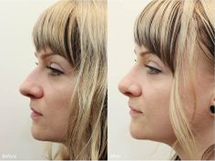 Nose reshaping procedure before and after pictures in Portland, Oregon. Results may vary. Go to www.drdarm.com for more information and to schedule your free consultation with the board-certified plastic surgeon.