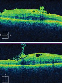 Review of Optometry® > A Look at VMT Syndrome