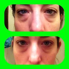 Results from using Lifting Lip & Eye Cream from It Works! for 2 weeks. Just $29 as a Loyal Customer. For more info or to order visit our website: http://www.theultimatecrazywrap.com/lifting-lip--eye-cream.html