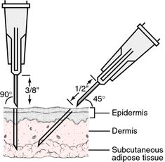 The 25+ best Subcutaneous injection ideas on Pinterest