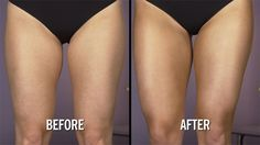 How to Contour Your Legs: Want sexy, ton. How to Contour Your Legs: Want sexy, toned legs this summer? This contouring trick can give you the look you want without going to the gym. Organic Skin Care, Natural Skin Care, Gym Video, Acne Solutions, Quites, Acne Skin, Acne Treatment, Trendy Hairstyles, Make Up