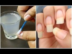She did this and her nails grew quickly. It was told by a friend who is a dermatologist - YouTube