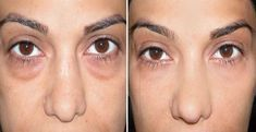 Dica: Como eliminar bolsas e olheiras nos olhos – 100% Natural