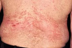 Pictures of Bumps on Skin: Cysts, Skin Tags, Lumps, and More Skin Bumps, Skin Tag, Skin Care Remedies, Skin Problems, Beauty Makeup, Tattoo Quotes, Tags, Health, Pictures
