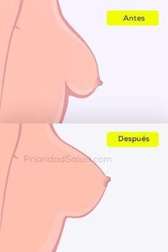 Solucion para los senos caídos, para lograr senos firmes, levantar tus senos.