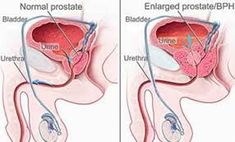 Dr Ajays Homeopathy  : Homeopathy For Prostate Enlargement