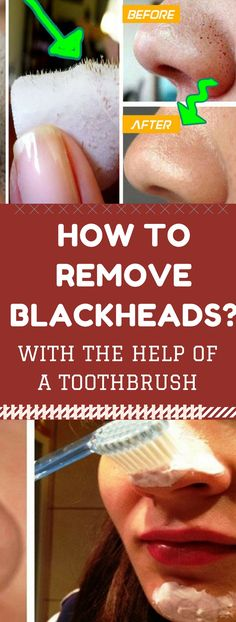 We all want to have clear skin, but those little parasites called blackheads come between our wishes. Blackheads are very small pimples with no skin on them, an. How To Stop Pimples Coming On Face Skin Care Acne, Skin Care Tips, Blackhead Remedies, Blackhead Remover, Pimple Remover, Blackhead Mask, Acne Remedies, Diy Pore Strips, Small Pimples