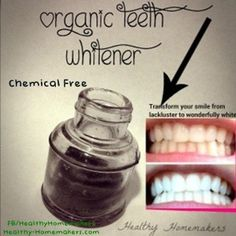 My before and after! Dramatic teeth whitening with all natural ingredients!