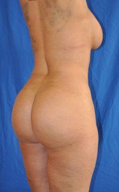 Brazil butt lift nude