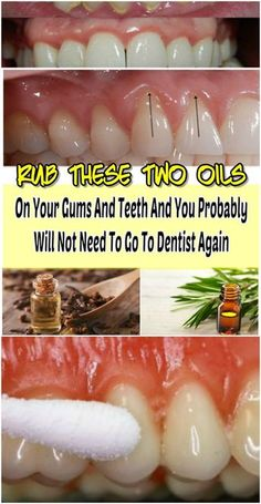 Top Remedies And Tips For Good Gum Care - Use Philips Sonicare Gum Health Toothbrush Gum Health, Teeth Health, Healthy Teeth, Dental Health, Oral Health, Dental Care, Health Tonic, Dental Hygienist, Health And Wellness