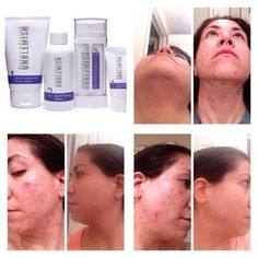 Before and after. Rodan+Fields Unblemish regimen.