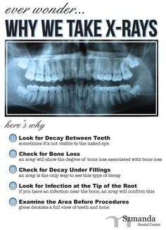 Dentaltown - Ever wonder why we take x-rays, here's why. 1) Look for decay between teeth which is sometimes not visible to the naked eye. 2) Check for bone loss associated with periodontal disease (Gum Disease).  3) Check for decay under fillings. An x-ray is the only way to see this type of decay. 4) Look for infection at the tip of the root. If you have an infection near the bone, an x-ray will confirm this. 5) Examine the area before procedures gives a dentist a full view of teeth and…