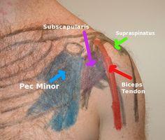palpation of subscapularis tendon | Athletes Training Athletes :: Self Muscle Massage pt 14- Anterior ...