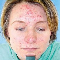 Simple Remedies For Acne Skin Care