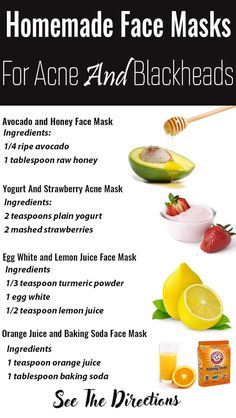 Homemade Face Masks For Blackheads Honey - Wow, face masks, let us count the way. - Homemade Face Masks For Blackheads Honey – Wow, face masks, let us count the ways we all love the - Mask For Oily Skin, Face Mask For Blackheads, Lemon Juice Face, Red Acne Marks, Mascarilla Diy, Face Mask Ingredients, Honey Face Mask, Honey Masks, Yogurt Face Mask