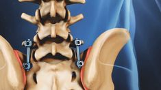 Understanding Sacroiliac Joint Dysfunction and Pain