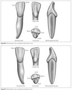 Mandibular incisors - Dental Technology: How-To, Tips Protésico Dental, Dental Hygiene School, Dental Facts, Dental Teeth, Dental Assistant, Teeth Braces, Dental Care, Dental Charting, Dental Photos