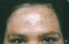 1000+ images about Melasma on Pinterest