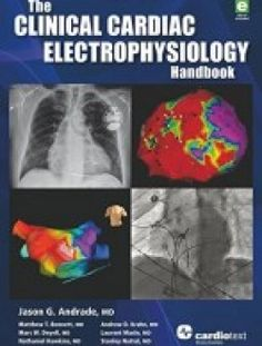 The Clinical Cardiac Electrophysiology Handbook - Free eBook Online