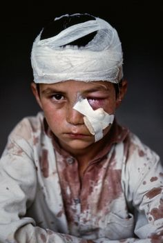 Injuried child portrait by Steve McCurry.
