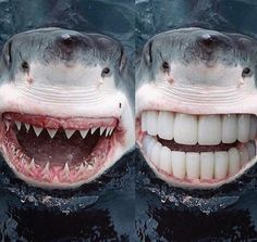 A new #smile can change everything ! #instabeauty #beforeandafter #whitening #transformation Tag someone who would like! ____________ Tag your  friends  so they can see Love  dentistry? Follow! ____________ #dentistry #odonto #dentist #dentista #dental #dentistrylife #dentalassistant #teeth #dentalsurgery #odontolove #hygiene #instahealth #dentalschool #dentalhygienist #odontologia #dentes #instadentist #dentalhumor #anatomy #dentalgram #instateeth #dentalnurse  #dentalphotogaphy…