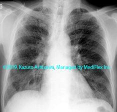 10. 間質性肺炎 症例092:剥離性間質性肺炎 胸部単純X線写真,『コンパクトX線アトラスBasic 胸部単純X線写真アトラス vol.1 肺』