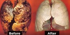 Clean Your Lungs In Only Three Days! A Must-Do For Smokers!