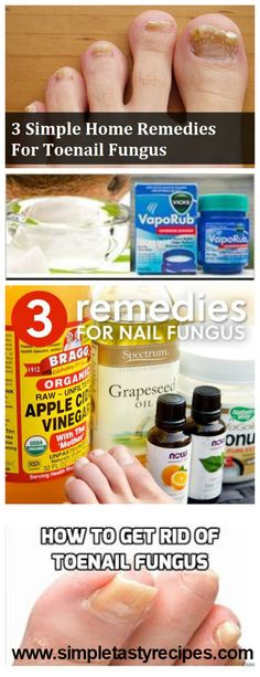 Watch This Video Mind Blowing Home Remedies for Toenail Fungus that Really Work Ideas. Astonishing Home Remedies for Toenail Fungus that Really Work Ideas. All You Need Is, Home Remedies, Natural Remedies, Health Remedies, Nails Yellow, Toenail Fungus Remedies, Manicure Y Pedicure, Pedicures, Simple House