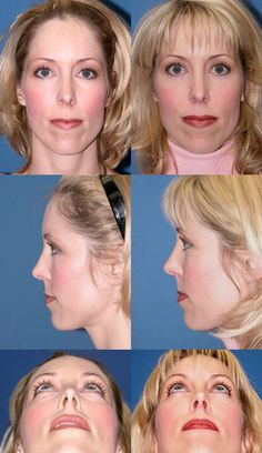 Eyelid Lift (Blepharoplasty) Photo Gallery Click thumbnails for larger images Eyelid Lift, Board Certified Plastic Surgeons, Liposuction, Plastic Surgery, Improve Yourself, Photo Galleries, Breast, Cosmetics, Detail