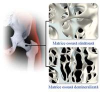 Sa tratăm osteoporoza gemoterapic