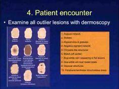 Dermoscopy tutorials by IDS