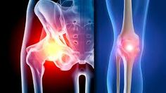 Global Hips and Knees-Reconstructives Sales Market Report 2017