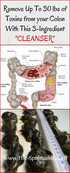 The BEST Colon Cleanser: How to Remove 20 lbs of Toxic Waste from Your Colon?!