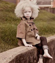 Afro Albino