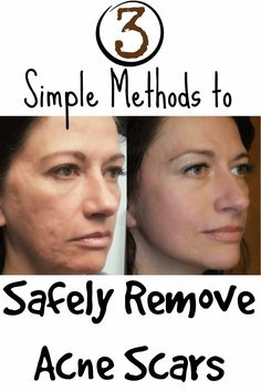 Skin Care And Health Tips: 3 Simple Methods to Safely Remove Acne Scars