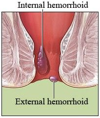 There are some herbs which can be used as home remedies for hemorrhoids such as horse chestnut which help in blood circulation in the veins. Witch hazel is great for those who are bleeding and all they have to do is apply it gently on the rectum using a soft cloth.