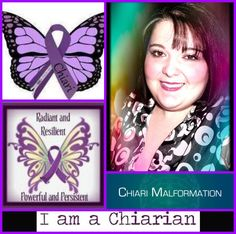 If you have chiari or know someone who has chiari, check out my page. It's a friendly community & a place to find support & encouragement even in the day to day struggles with chiari. ♥ April