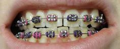 Dental braces have, during all the years, played a significant role in teeth alignment and restoring natural smile. Ceramic and metal braces are among the Dental Veneers, Dental Braces, Teeth Braces, Dental Implants, Cute Braces Colors, Ceramic Braces, Cosmetic Dentistry Procedures, How Do You Remove, Dental Fillings