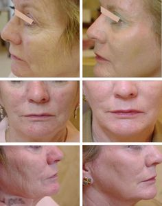 Reduce or remove facial scars and wrinkles with laser resurfacing    Bense SurgiSpa #BenseBeauty