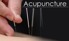 Acupuncture and cupping are wonderful treatments for pain management. Avascular necrosis (AVN) of the knee and psoriatic arthritis (PsA) are extremely painful on their own, let alone combined! My knee was finally settling down and the complex regional pain syndrome (CRPS) was pretty much gone. Going to a pain management doctor who mixed eastern and western medicine was amazing. Itsjustabadday.com