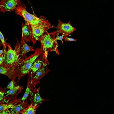 Protein expression in the 4T1 murine breast cancer model system. More at www.cusabio.com